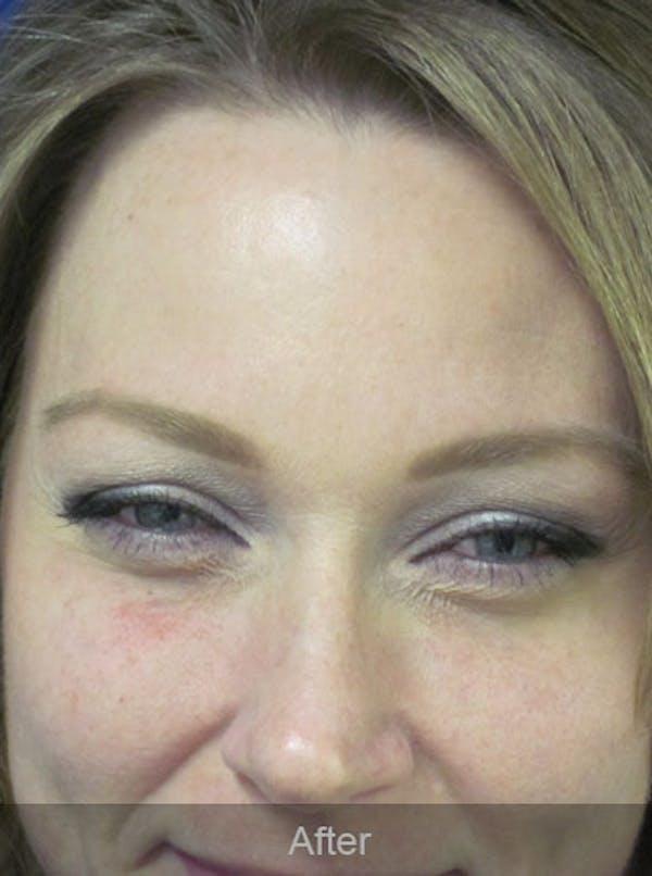 Botox Gallery - Patient 4891032 - Image 4