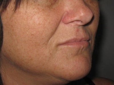 Laser Skin Resurfacing Gallery - Patient 4891036 - Image 1
