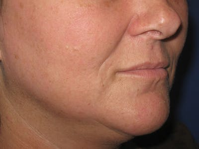 Laser Skin Resurfacing Gallery - Patient 4891036 - Image 2