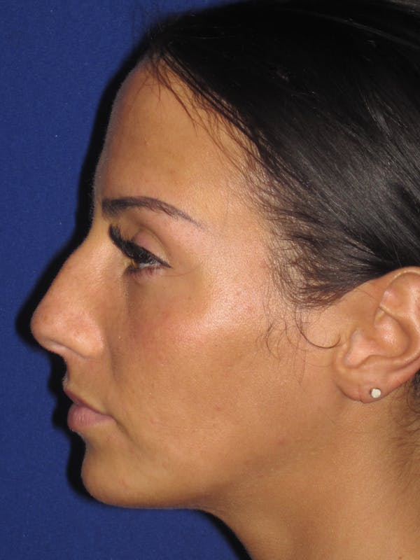 Rhinoplasty Gallery - Patient 4891044 - Image 1