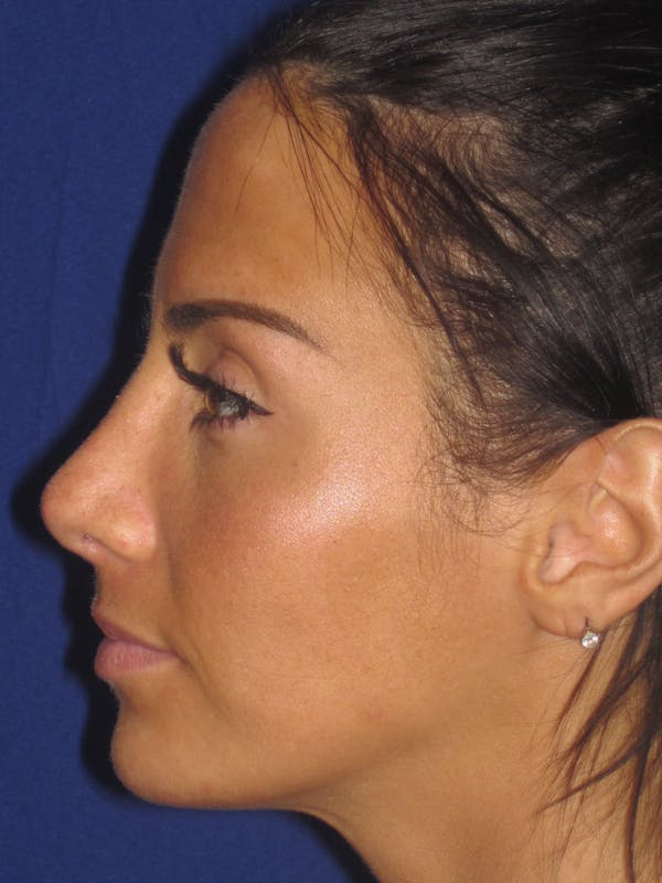 Rhinoplasty Gallery - Patient 4891044 - Image 2