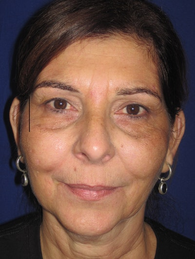 Laser Skin Resurfacing Gallery - Patient 4891046 - Image 1