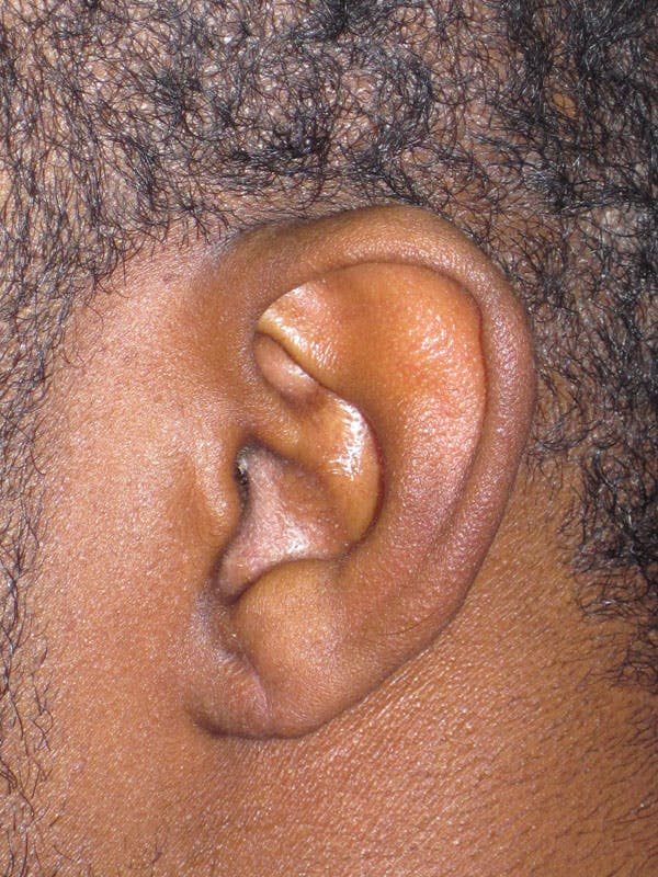 Split Ear Lobe Repair Gallery - Patient 4891038 - Image 2