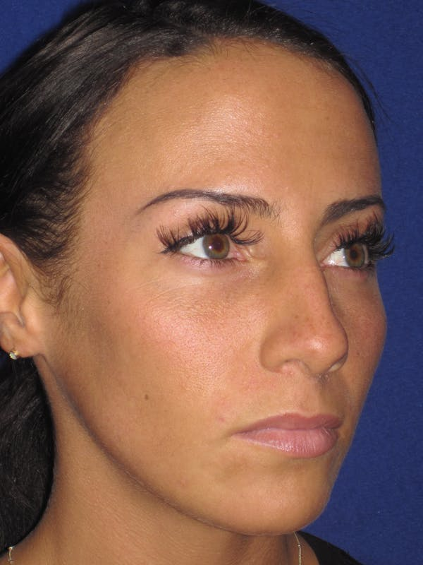 Rhinoplasty Gallery - Patient 4891044 - Image 3