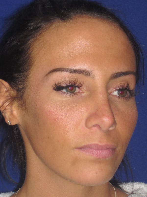 Rhinoplasty Gallery - Patient 4891044 - Image 4