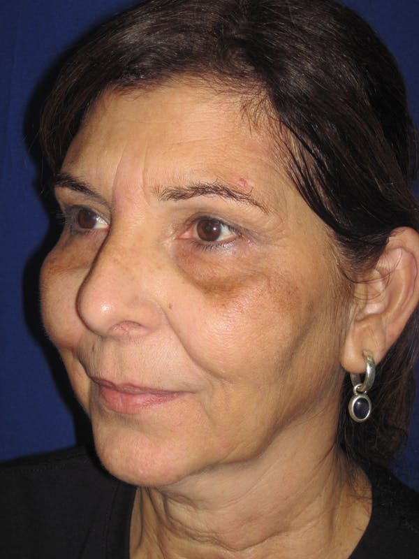 Laser Skin Resurfacing Gallery - Patient 4891046 - Image 3