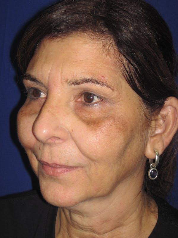 Laser Skin Resurfacing Gallery - Patient 4891046 - Image 3