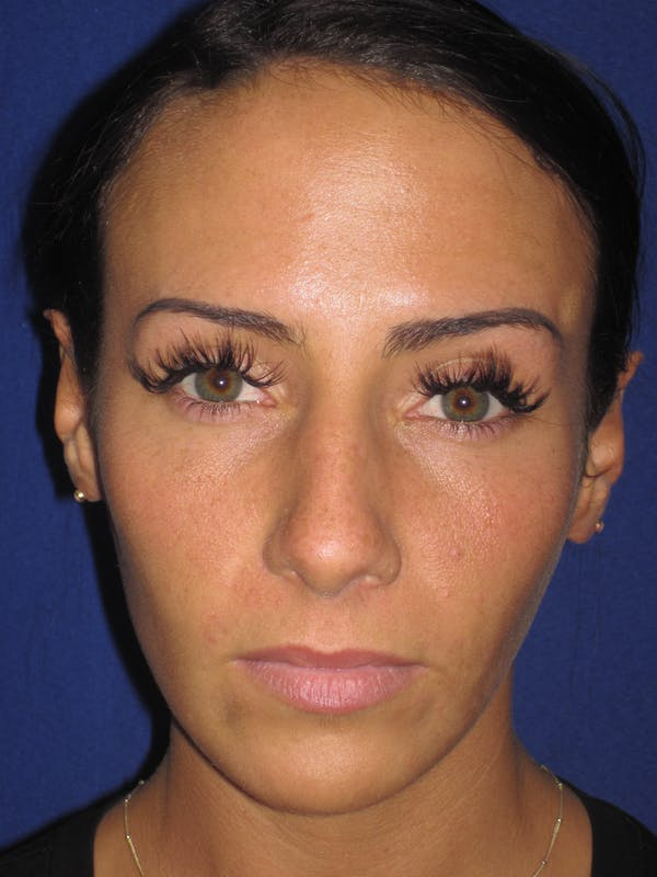 Rhinoplasty Gallery - Patient 4891044 - Image 5