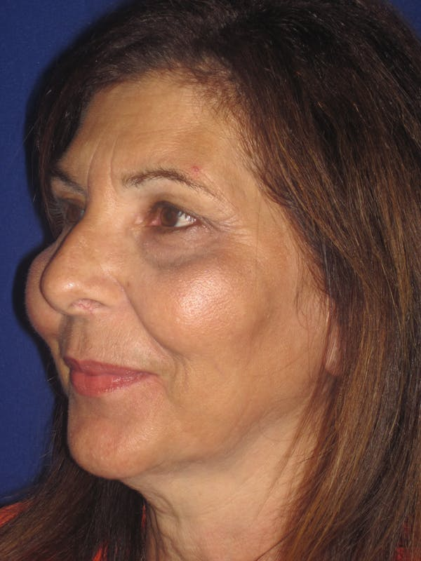 Laser Skin Resurfacing Gallery - Patient 4891046 - Image 4