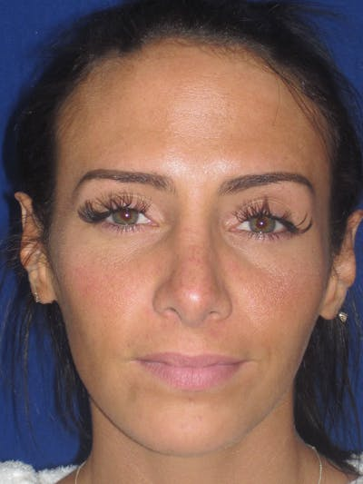 Rhinoplasty Gallery - Patient 4891044 - Image 6