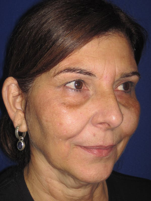 Laser Skin Resurfacing Gallery - Patient 4891046 - Image 5