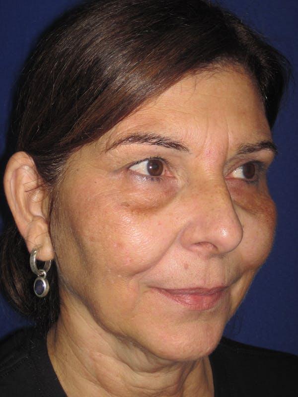 Laser Skin Resurfacing Gallery - Patient 4891046 - Image 5
