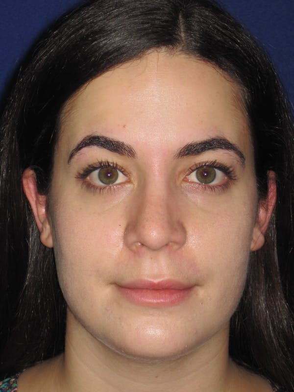 Rhinoplasty Gallery - Patient 4891051 - Image 2