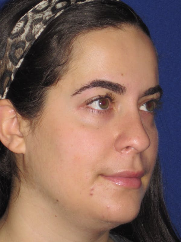 Rhinoplasty Gallery - Patient 4891051 - Image 3