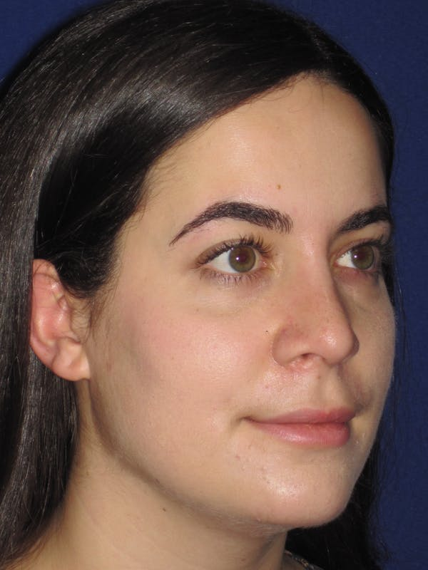 Rhinoplasty Gallery - Patient 4891051 - Image 4
