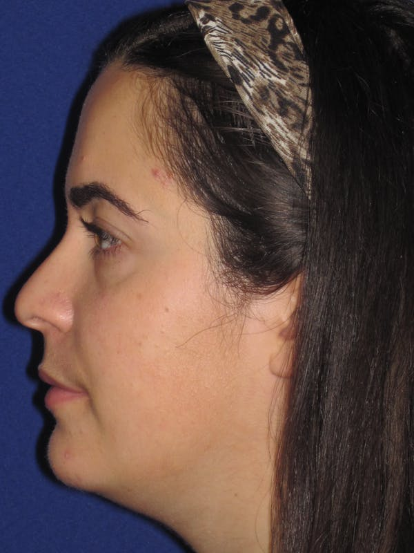 Rhinoplasty Gallery - Patient 4891051 - Image 5