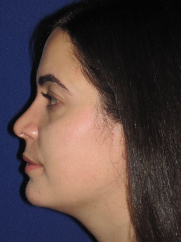 Rhinoplasty Gallery - Patient 4891051 - Image 6