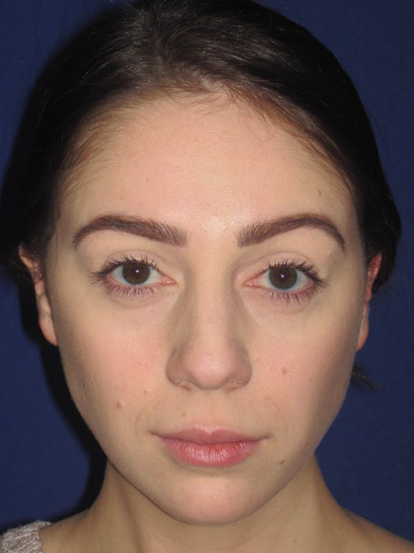 Rhinoplasty Gallery - Patient 4891063 - Image 1