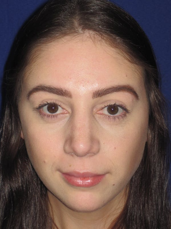 Rhinoplasty Gallery - Patient 4891063 - Image 2
