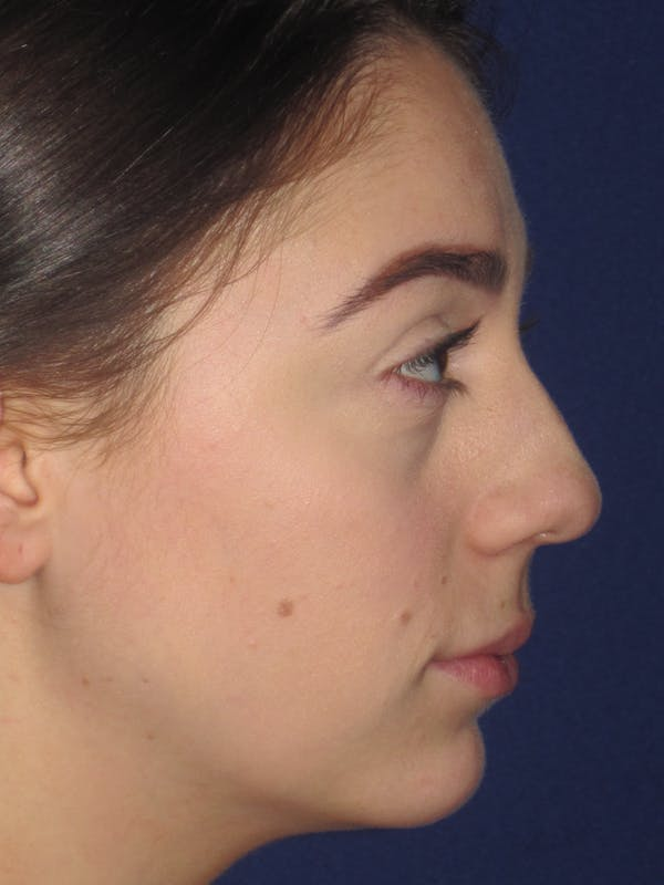 Rhinoplasty Gallery - Patient 4891063 - Image 3