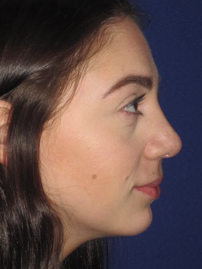 Rhinoplasty Gallery - Patient 4891063 - Image 4