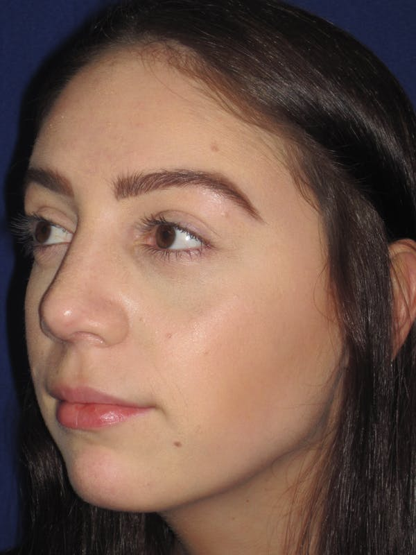 Rhinoplasty Gallery - Patient 4891063 - Image 6
