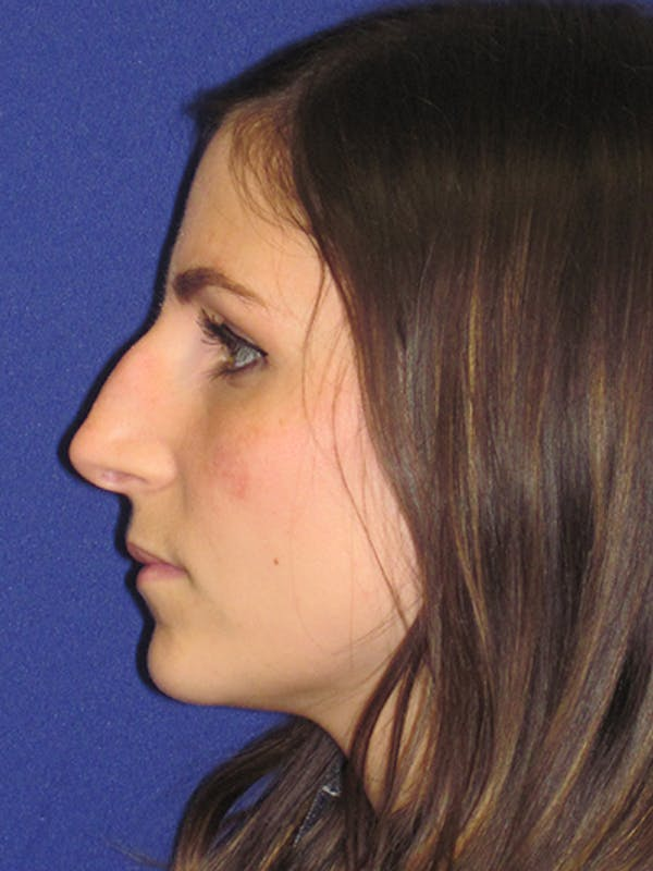 Rhinoplasty Gallery - Patient 4891068 - Image 1