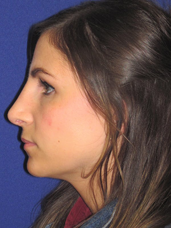 Rhinoplasty Gallery - Patient 4891068 - Image 2