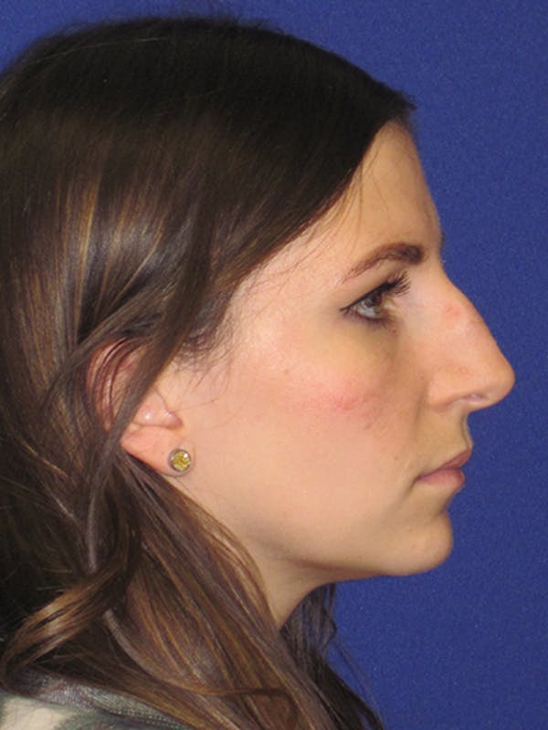 Rhinoplasty Gallery - Patient 4891068 - Image 3