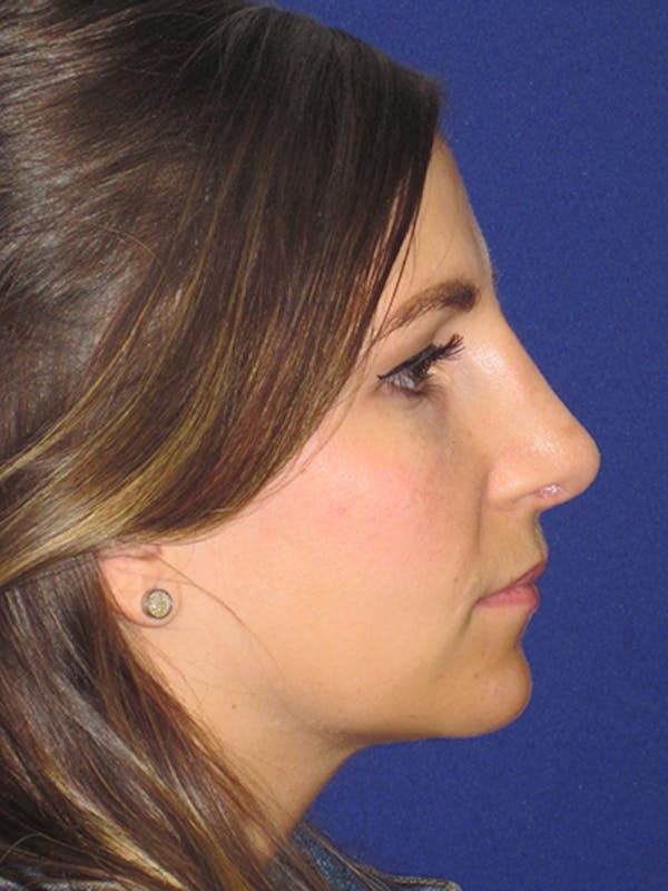 Rhinoplasty Gallery - Patient 4891068 - Image 4