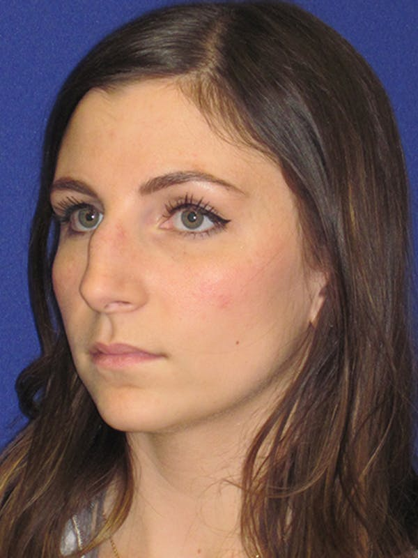 Rhinoplasty Gallery - Patient 4891068 - Image 5