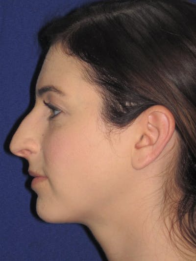 Rhinoplasty Gallery - Patient 4891072 - Image 1