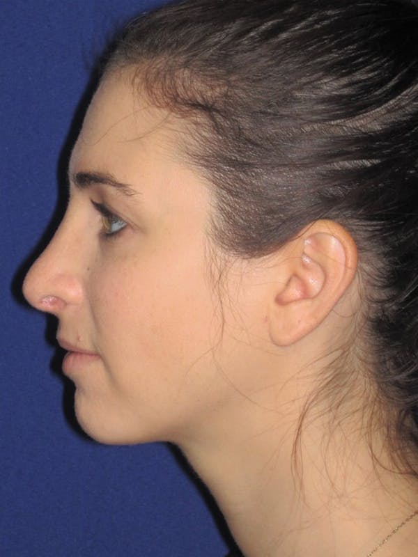 Rhinoplasty Gallery - Patient 4891072 - Image 2