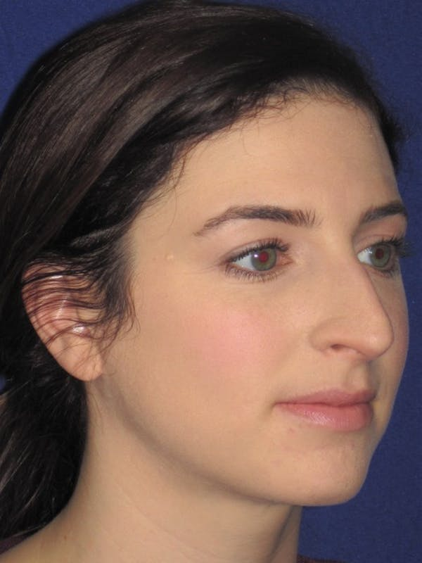 Rhinoplasty Gallery - Patient 4891072 - Image 3