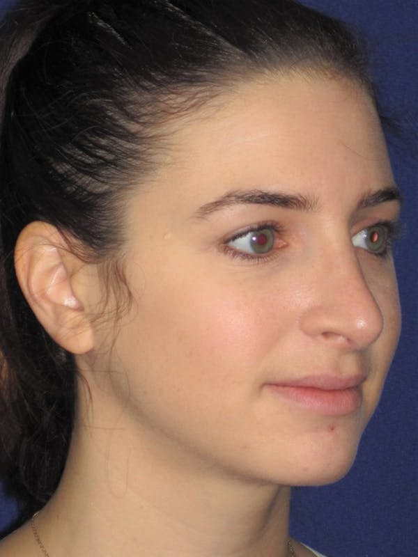 Rhinoplasty Gallery - Patient 4891072 - Image 4