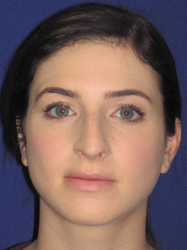 Rhinoplasty Gallery - Patient 4891072 - Image 5