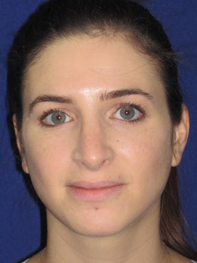 Rhinoplasty Gallery - Patient 4891072 - Image 6