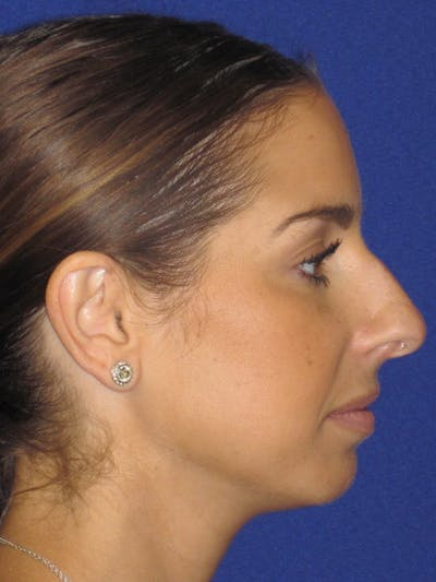 Rhinoplasty Gallery - Patient 4891077 - Image 1