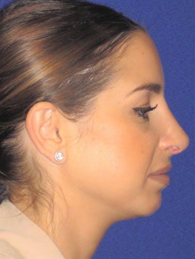 Rhinoplasty Gallery - Patient 4891077 - Image 2