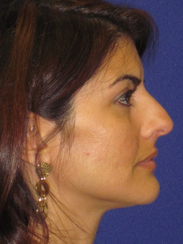 Rhinoplasty Gallery - Patient 4891085 - Image 1