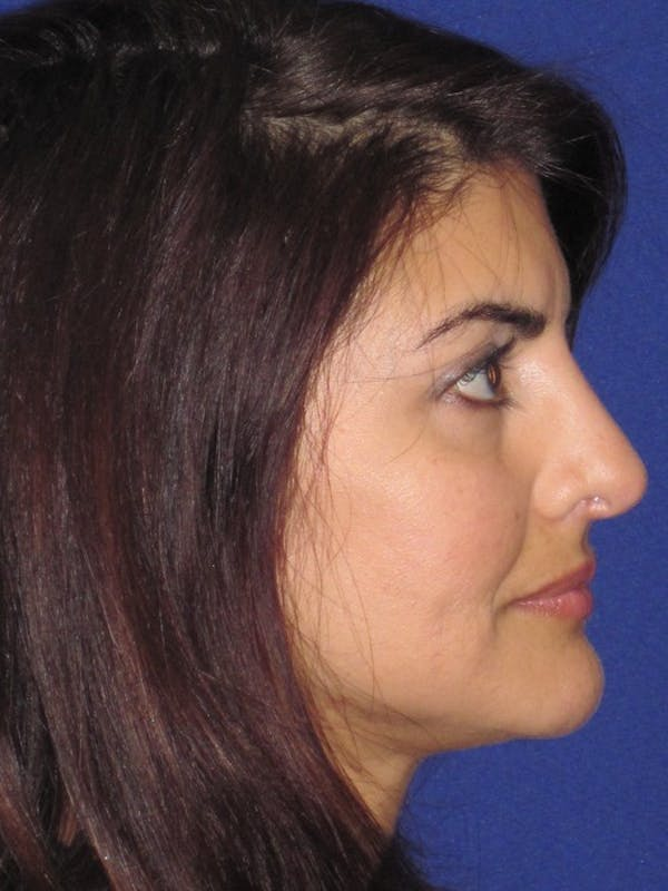 Rhinoplasty Gallery - Patient 4891085 - Image 2