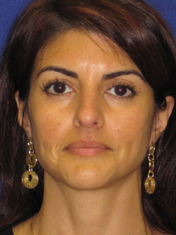Rhinoplasty Gallery - Patient 4891085 - Image 7