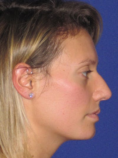 Rhinoplasty Gallery - Patient 4891091 - Image 1