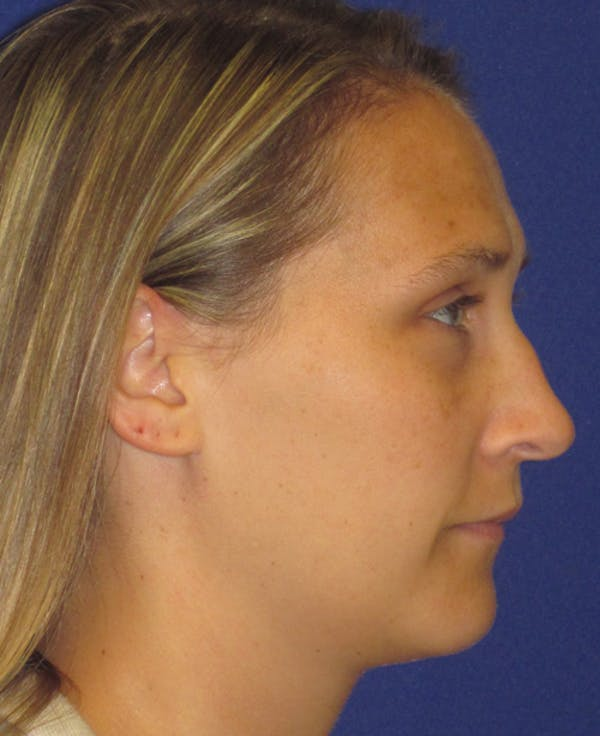 Rhinoplasty Gallery - Patient 4891145 - Image 3