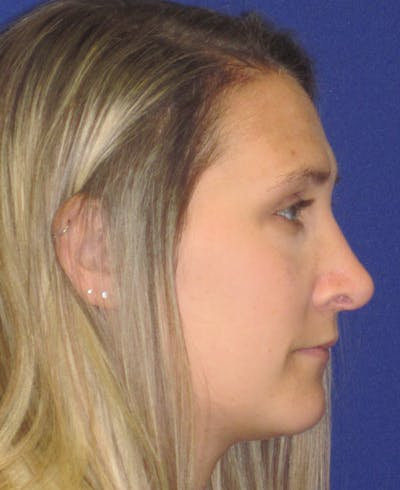 Rhinoplasty Gallery - Patient 4891145 - Image 4