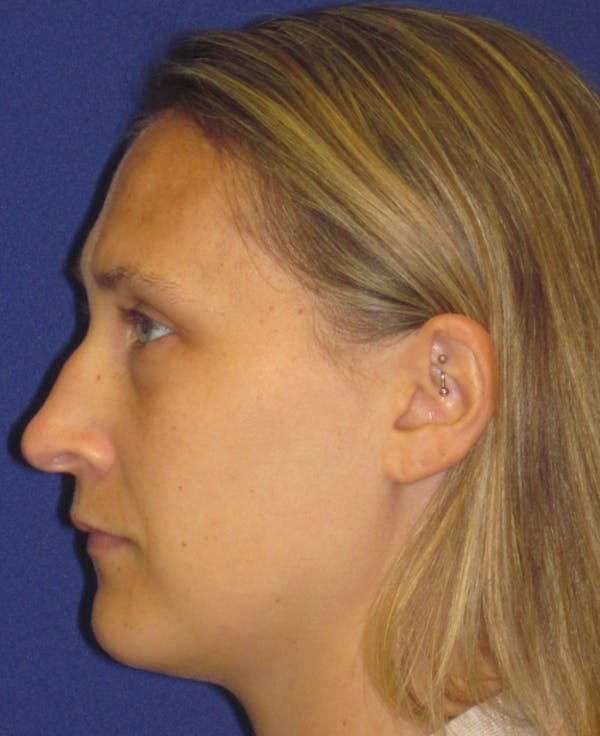 Rhinoplasty Gallery - Patient 4891145 - Image 5