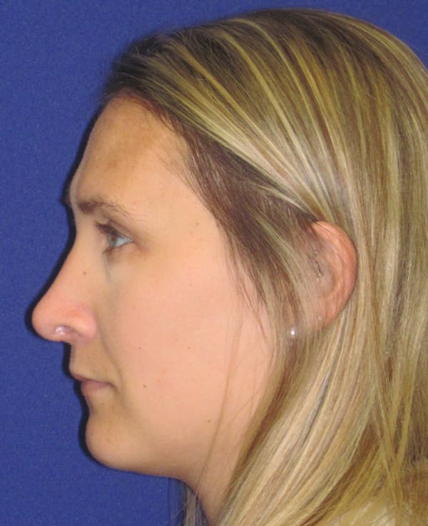 Rhinoplasty Gallery - Patient 4891145 - Image 6