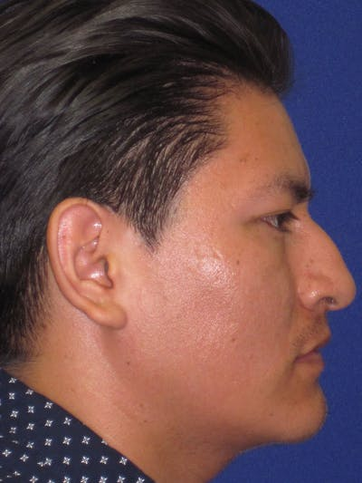 Rhinoplasty Gallery - Patient 4891195 - Image 1