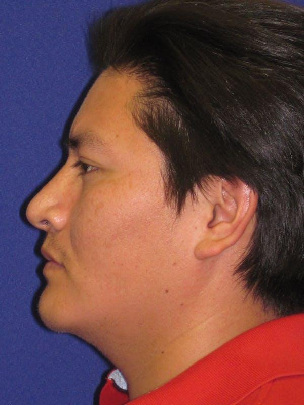 Rhinoplasty Gallery - Patient 4891195 - Image 6