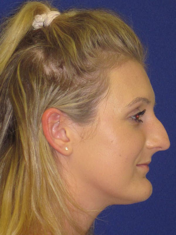 Rhinoplasty Gallery - Patient 4891196 - Image 1